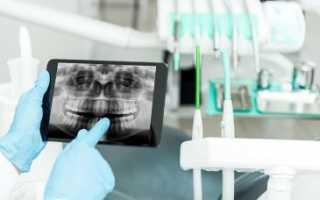 Эстетическая реставрация передних зубов препаратом геркулайт