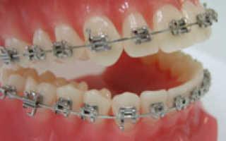 Пластины для выравнивания зубов киров