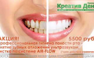Реставрация зубов композитными вкладками