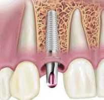 Реставрация депульпированных зубов на штифтах