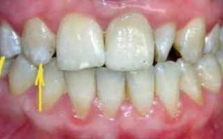 Реставрация боковых зубов: в Москве