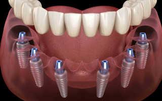 Протезирование зубов коронками: виды и этапы процедуры