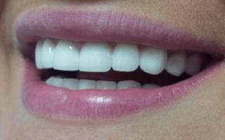 Зубная коронка металлокерамика или цирконий