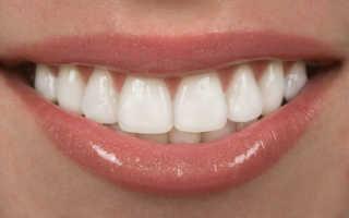 Выравнивание двух передних зубов