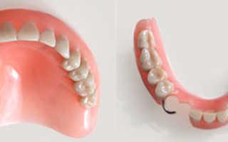 Зубные протезы и коронки из пластмассы
