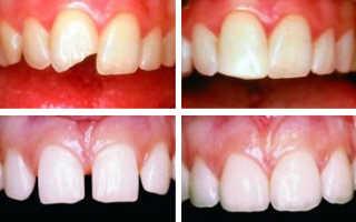 Реставрация зубов: отзывы. Процедура реставрации зубов