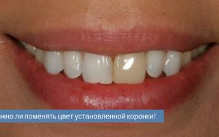 Желтое напыление на зубных коронках
