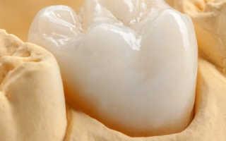 Как происходит восстановление коронковой части зубов?