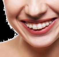 Как выпрямить зубы. Как выпрямить зубы с помощью пластинок, трейнеров, брекетов, капп