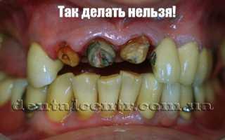 Если расшаталась зубная коронка