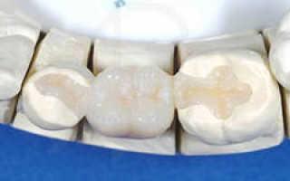 Адгезивное протезирование — без обточки соседних зубов