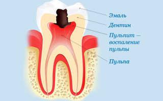 После лечения зуба больно на него нажимать: причины, осложнения, порядок действий