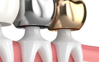 Из какого металла делают коронки для зубов