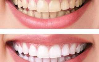 Рекомендации и правила ухода после отбеливания зубов.