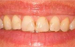 После реставрации зуба мешает