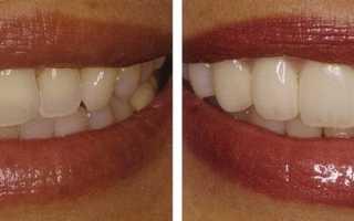 Центр художественной реставрации зубов