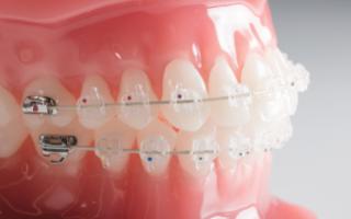 Выравнивание зуба с помощью массажа