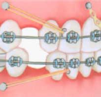 Брекеты на коронки — ставят ли конструкции на зубные протезы