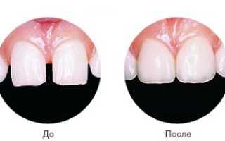 Как выглядит художественная реставрация зуба