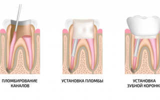 Если расцементировалась зубная коронка