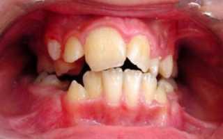 Аномалии формы зубов — причины, симптомы, диагностика и лечение
