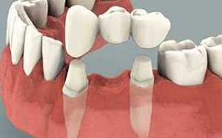 Зубной мост и коронка на 5