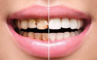 Художественная реставрация зубов – фото до и после