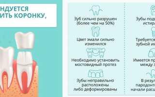 Какие коронки лучше ставить на передние зубы?