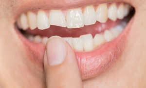 Чем приклеить сломанный зуб дома