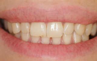 Сколько времени занимает реставрация зубов