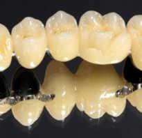 Материал для зубных коронок сплавы