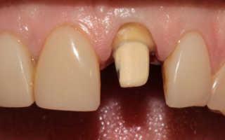 Боль под зубной коронкой при надавливании
