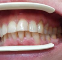 Накладки на жевательные зубы для поднятия прикуса