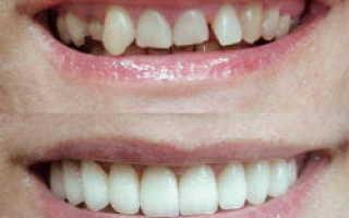 Один зуб выпирает реставрация