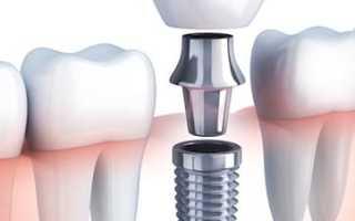 Металлокерамические коронки на зубы (коронки из металлокерамики)