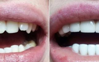 Металлические зубные коронки с напылением, особенности