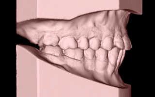 Хирургический метод выравнивания зубов