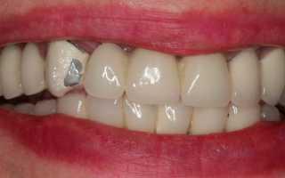 Сколы на зубных коронках
