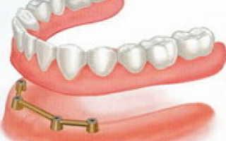Зубные коронки на имплантах. Этапы установки и виды имплантов. Основные преимущества. установки.