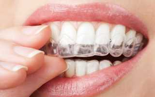 Как ускорить выравнивание зубов