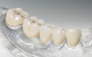 Можно ли подтачивать зубную коронку