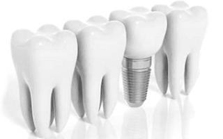 Прогрессивная реставрация зубов по методу CEREC 3D