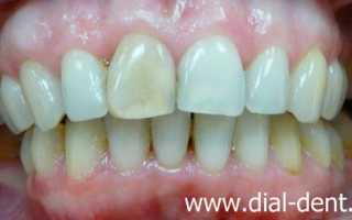 Художественная реставрация потемневшего зуба