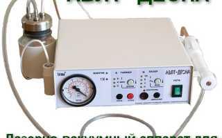 Лазерный аппарат для лечения пародонтита