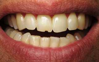 Если сломан зуб реставрация