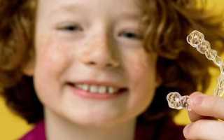 Выравнивание зубов у детей – где лучше сделать