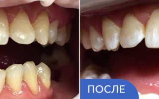 При реставрации зуба удаляют нерв