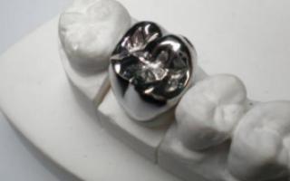 Штампованные коронки — этапы изготовления металлической конструкции
