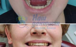 Стоимость одной зубной коронки
