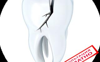 Реставрация трещин на переднем зубе